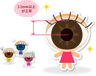眼瞼下垂 かすいちゃん