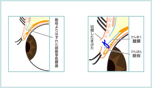 挙筋前転法(信州大学式)